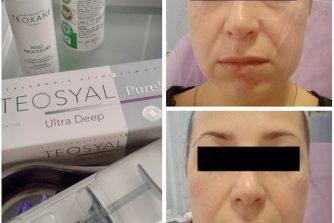 fileri-konturna-plastika-kosmetolog