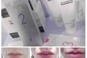 protsedura-korektsiyi-gub-2-kosmetolog