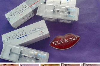 protsedura-korektsiyi-gub-kosmetolog