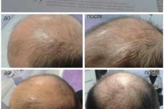 Мезотерапія - стимуляція росту волосся на голові-min